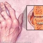 อาการ โรคข้ออักเสบรูมาตอยด์