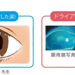 อาการตาแห้ง..มีความรู้สึกไม่สบายระคายเคืองดวงตา หรือมีอาการของความกังวลในสายตา?