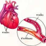 อาหารเสริม ความดันโลหิตสูง ไขมันในเส้นเลือด และโรคหัวใจ