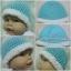 หมวกถักทารกคลอดก่อนกำหนด thumbnail 1