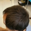 ผงโรยผม HairPRO เท่านั้น จบทุกปัญหาเส้นผม ผมบาง หัวไข่ดาว รอยแสกกว้าง line id 0827956955 thumbnail 14