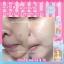 Barbieswink Acne toner บาร์บี้วิ้ง แอคเน่ โทนเนอร์ เปลี่ยนหน้าปรุเป็นหน้าปัง เปลี่ยนหน้าพังเป็นหน้าใส เปลี่ยนผิวเสีย เป็นผิวสวย ขาวใสไร้สิว thumbnail 11