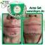Acne Set by Freshy Face ชุดปราบสิว รักษาสิวทุกชนิด เห็นผลจริง ปลอดภัย ไร้สารอันตราย thumbnail 11