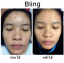 BLING SOAP & MASK By แพท ณปภา thumbnail 30