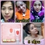 BFC Baby Face Cream Set บีเอฟซี ครีมหน้าใสรักษาสิว thumbnail 20
