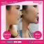 Diamond V Fit Mask ไดมอนด์วีฟิตมาส์ค มาส์คหน้าเรียว ยกกระชับรูปหน้า ไม่ต้องศัลยกรรมหรือฉีดโบท็อกซ์ thumbnail 32