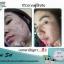 Acne Set by Freshy Face ชุดปราบสิว รักษาสิวทุกชนิด เห็นผลจริง ปลอดภัย ไร้สารอันตราย thumbnail 12
