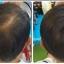 ผงโรยผม HairPRO เท่านั้น จบทุกปัญหาเส้นผม ผมบาง หัวไข่ดาว รอยแสกกว้าง line id 0827956955 thumbnail 2