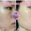 Strawberry Blink Serum เซรั่มสตอเบอรี่หน้าใส ลดสิว ผิวขาวใส thumbnail 17
