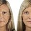 Neocell Collagen Beauty Builder นีโอเซลล์ คอลลาเจน บิวตี้ บิวเดอร์ ชะลอริ้วรอยแห่งวัย ปรับสภาพผิว คืนความสาวและความอ่อนเยาว์ thumbnail 5