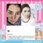 Barbieswink Acne toner บาร์บี้วิ้ง แอคเน่ โทนเนอร์ เปลี่ยนหน้าปรุเป็นหน้าปัง เปลี่ยนหน้าพังเป็นหน้าใส เปลี่ยนผิวเสีย เป็นผิวสวย ขาวใสไร้สิว thumbnail 26