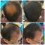 ผงโรยผม HairPRO เท่านั้น จบทุกปัญหาเส้นผม ผมบาง หัวไข่ดาว รอยแสกกว้าง line id 0827956955 thumbnail 6