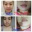 Aura Pink Two ครีมทาปากแดง ปากชมพู นมชมพู Lip & Nipple Cream thumbnail 95