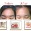 (ส่งฟ(ส่งฟรีEMS)Repair Cream Wonderful Skin รีแพร์ครีม (พี่ซี) thumbnail 67