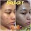 (ส่งฟรีEMS)Freshy Face Gold Set ครีมถุงทองหน้าใส thumbnail 65