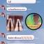 ส่งฟรีEMS(แบบขวดปั๊ม)OMO White Body Lotion โอโม่ไวท์ by กําไร thumbnail 11